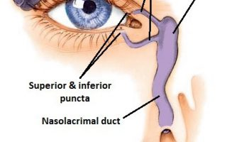 Bellevue-ENT-blocked-tear-duct-nasolacrimal