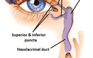 Bellevue-ENT-blocked-tear-duct-nasolacrimal