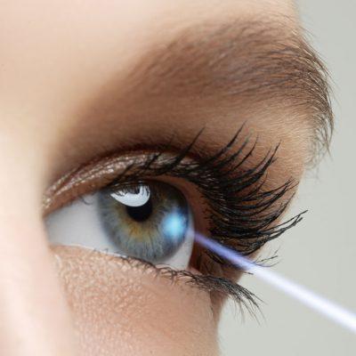 laser-eye-tratamente